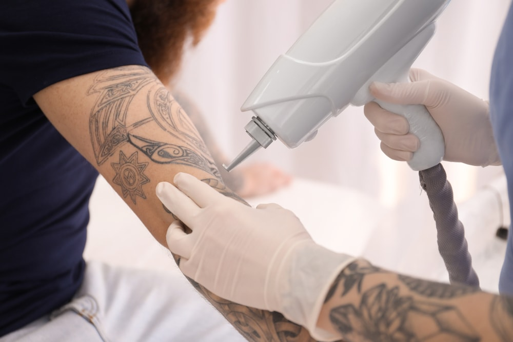 11 Questions Answered For Laser Tattoo Removal