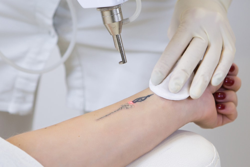 Tattoo Removal Methods And Their Costs